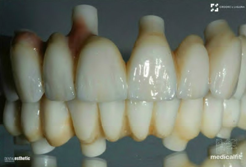 Zirconium Prosthesis & Implants
