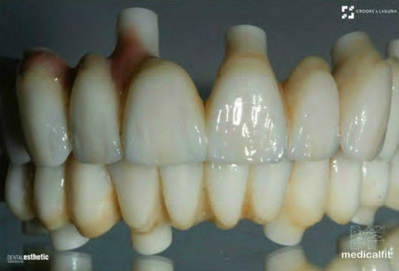 Zirconium Prosthesis & Implants