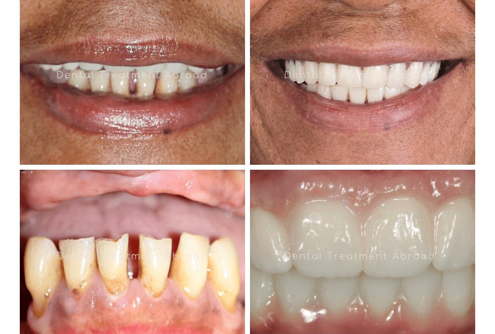 Full Set of Dental Implants