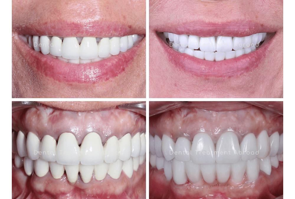 Zirconia Dental Crowns