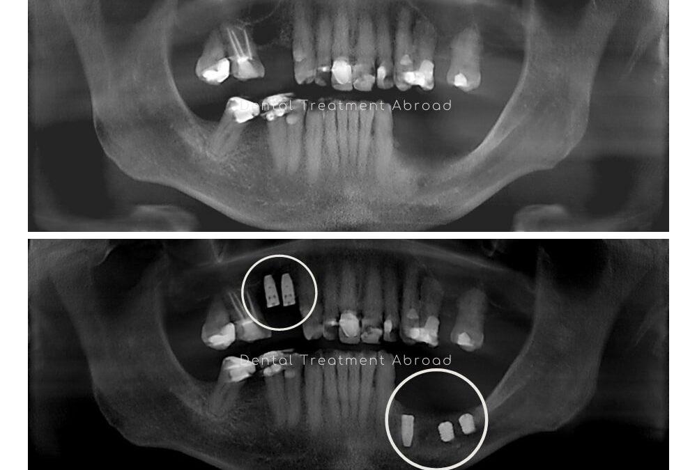 Sinus Lift & Short Implants